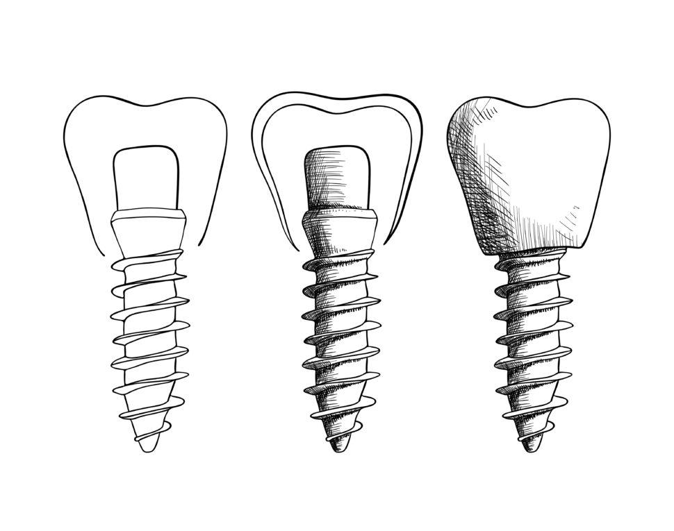 zubní implantáty blog